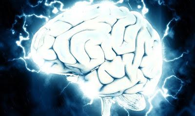 脳の画像 30代
