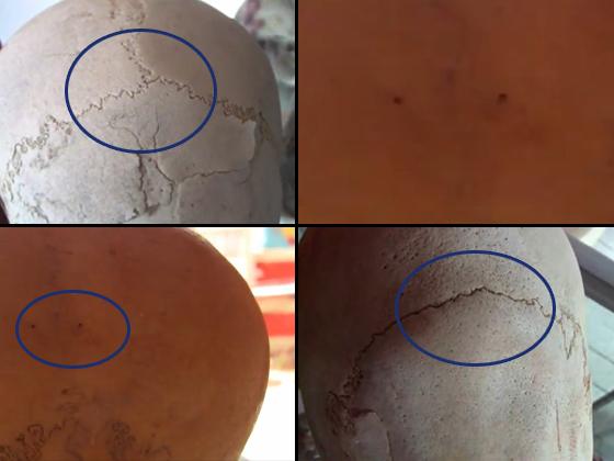 Algunos de los cráneos alargados analizados por Brien Foerster. Arriba izquierda, un cráneo humano compuesto de tres placas. Abajo derecha, un cráneo alargado de un habitante del antiguo Perú que extrañamente presenta solo dos placas craneales. Las otras dos imágenes muestran dos extraños orificios encontrados en la parte de atrás de un cráneo alargado. Estos pequeños orificios no existen en un cráneo humano. (Fotos cortesía de Brien Foerster)