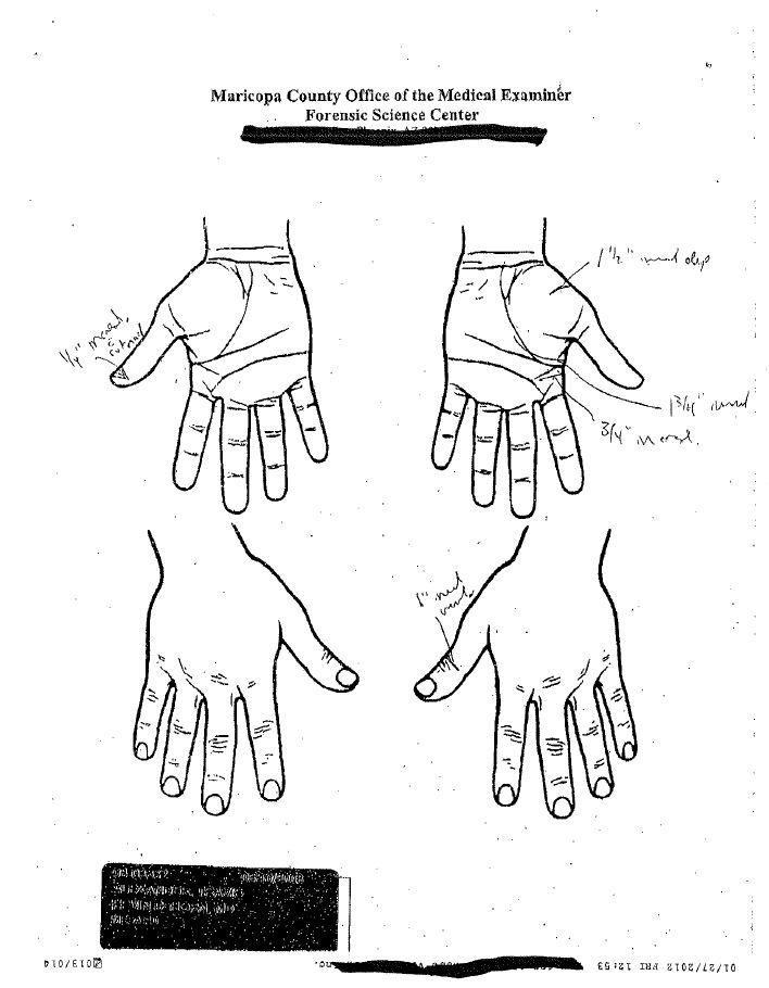 Morbitbuzz: Autopsy Report of Travis