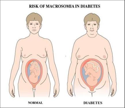 consecuencias bebe macrosomía y diabetes gestacional