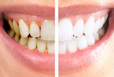 Cara Memutihkan Gigi Kuning dengan Bahan Alami