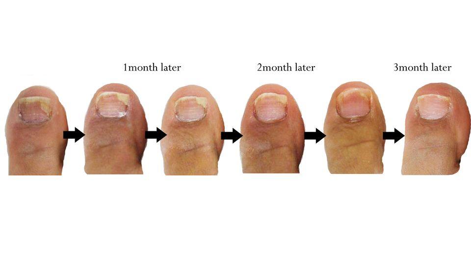 Cure Toenail Fungus using Vicks Vaporub Or Thyme Oil | ToeNail ...
