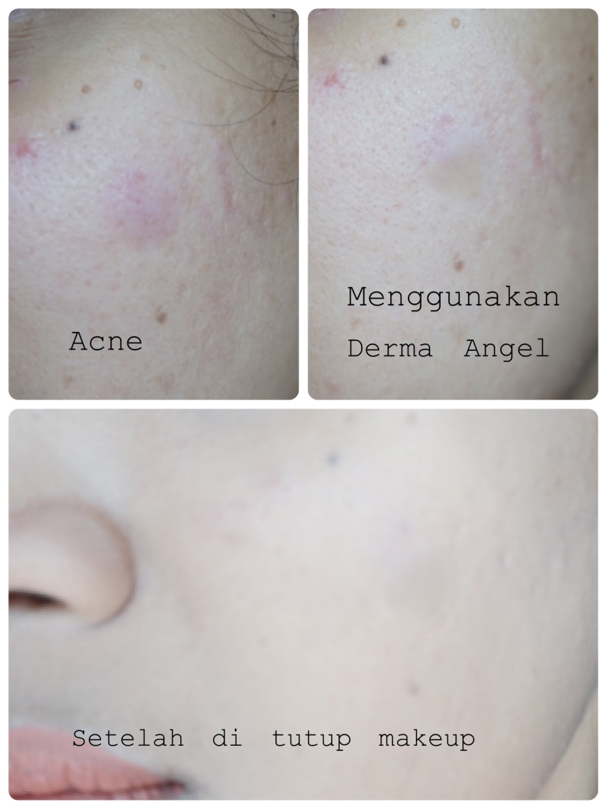 DERMA ANGEL ACNE PATCH REVIEW