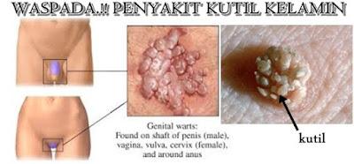 Penyakit kutil pada kelamin