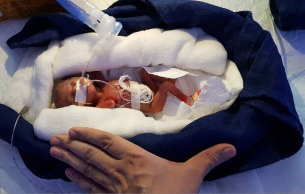 0.8 lb (362.9g) 12-week Premature Baby Is The Smallest To Ever Make It