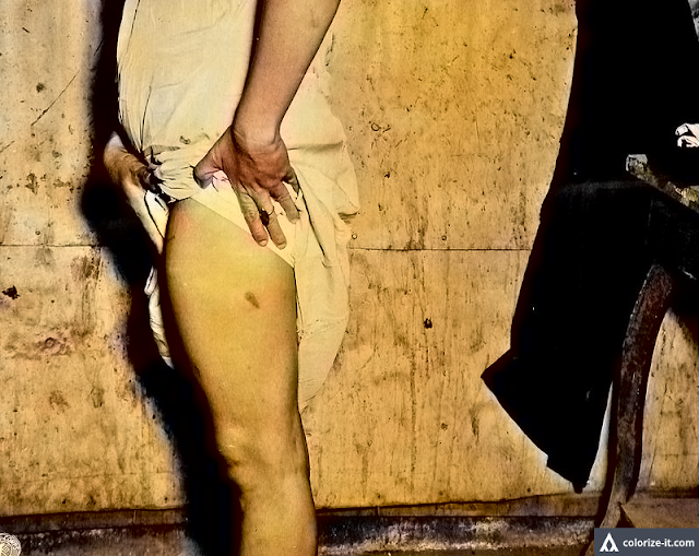Woman showing bayonet wounds on her leg, Santo Tomas 1945.  Image source:  United States National Archives.