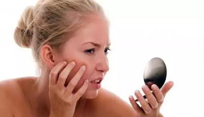 Da xuất hiện đốm vàng hoặc nâu là dấu hiệu của nám da