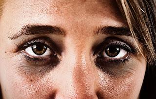 Dark circle of eyes