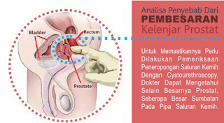 Nama Obat Pembesaran Prostat Jinak Di Apotik ( Benign Prostatic Hyperplasia ) BPH