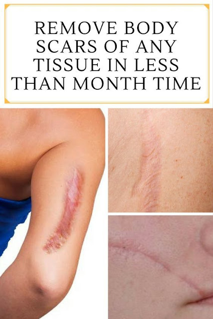 REMOVE BODY SCARS OF ANY TISSUE IN LESS THAN MONTH TIME