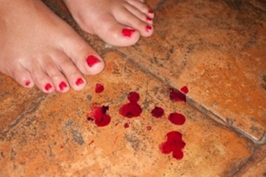 bleeding what sex vaginal causes after