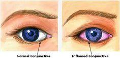 remedios caseros para infecciones oculares
