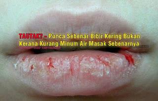 kenapa bibir sering kering; vitamin untuk bibir sihat; kenapa bibir sering pecah