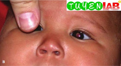 Infant tolerates right eye blockage