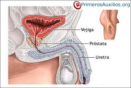 sudores nocturnos de la próstata
