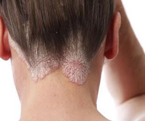 saç mantarı tedavisi, saç mantarına ne iyi gelir