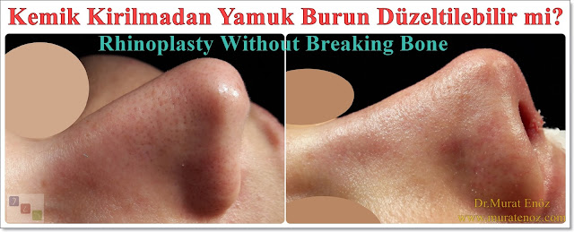 Asymmetric nose correction without bone broken - Rhinoplasty without breaking bone for deviated noses - Nose aesthetic without breaking bone - Nose aesthetic for curved noses - Nose tip aesthetics - Rhinoplasty without breaking bone - Rhinoplasty in istanbul - Tip plasty in istanbul - Nose job without breaking the nasal bone in Istanbul - Deviated nose surgery - Curved nose correction without nsal bone breaking - Using of cartilage paste in rhinoplasty
