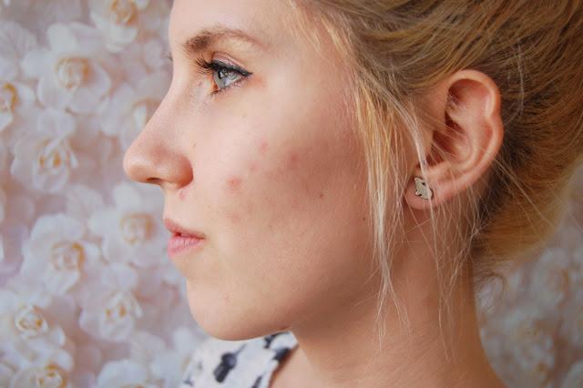 15+ Cara Menghaluskan Wajah Dari Bekas Jerawat Yang Paling Ampuh