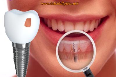 implant diş nasıl yapılır