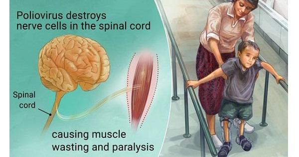 Acute Paralytic Polio