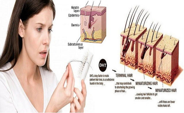 how to prevent female hair loss naturally