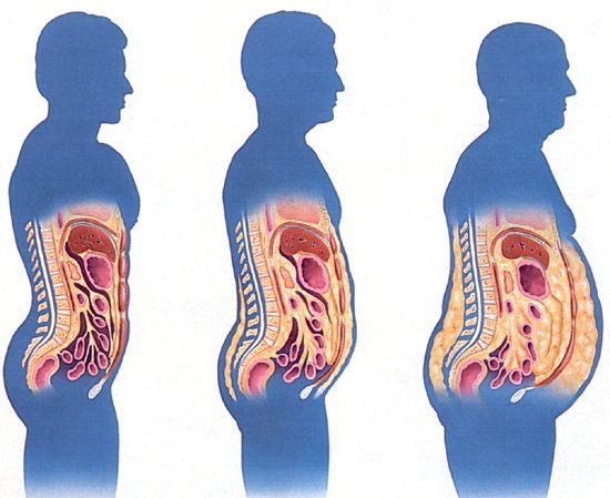 วิธีลดไขมันบริเวณหน้าท้อง