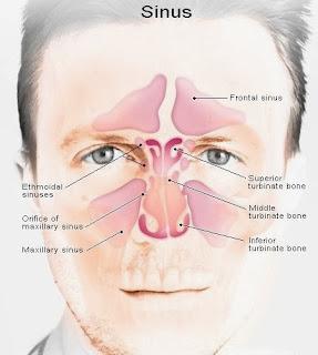 Gejala, penyebab dan pengobatan sinusitis.