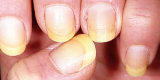 Yellow Nail Syndrome Homeopathy Treatment in Chennai