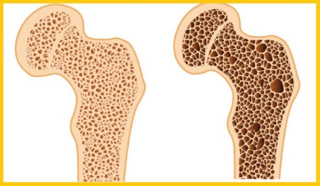 huesos blandos por deficiencia de vitamina D