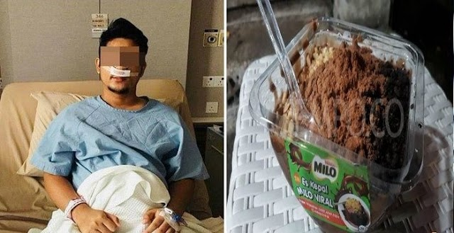 Pria Ini Harus Lakukan Bedah Sinus Karena Terlalu Banyak Minum Es Kepal Milo. Begini Kisahnya!