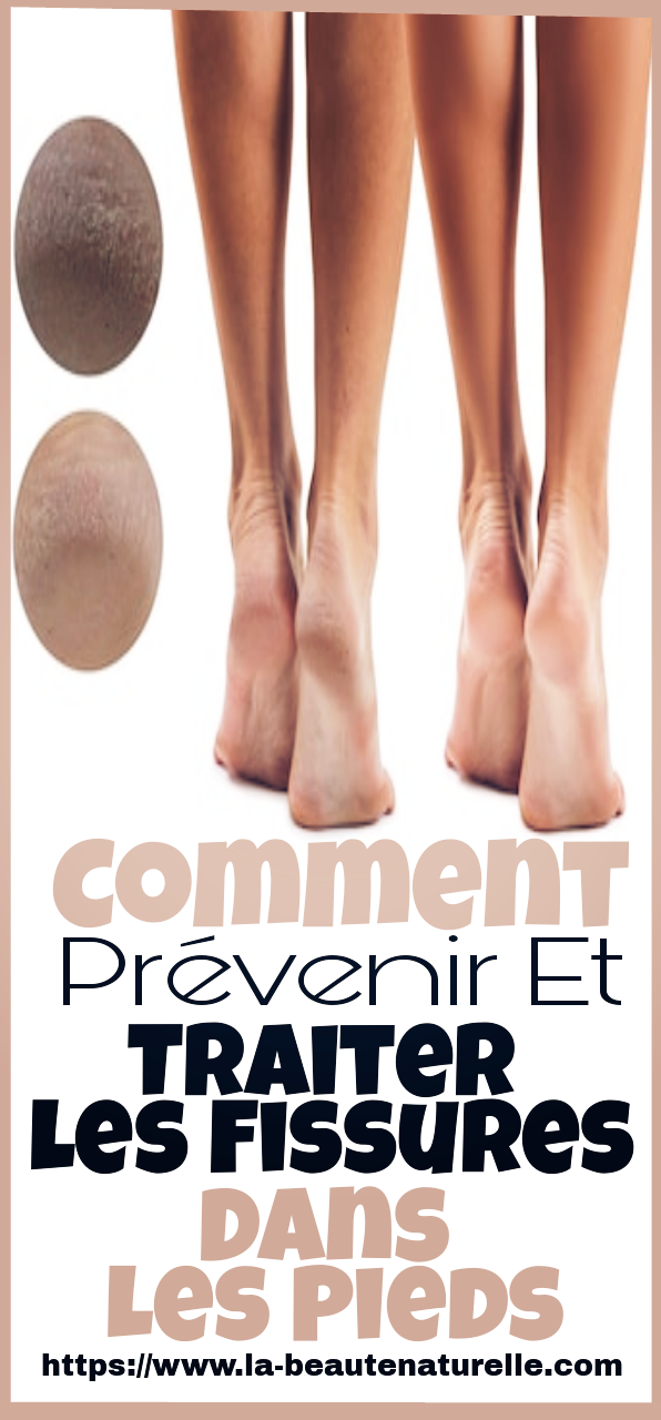 Comment prévenir et traiter les fissures dans les pieds