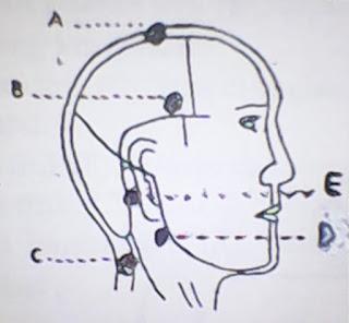 Pengobatan Sakit Kepala dengan Pijat dan Ramuan Alami