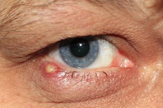 Penyebab mata bengkak dan cara mengatasinya