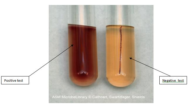 Protocol For Motility, H2S Production & Indole Tests ...