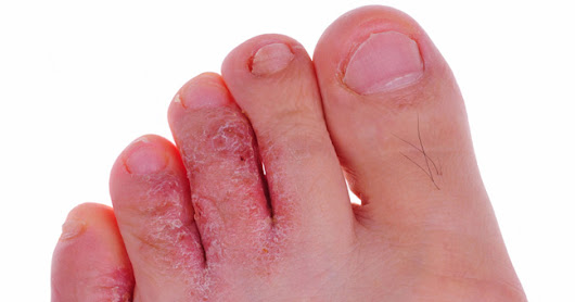 Athlete's Foot: Symptoms, risk factors, prevention and treatment