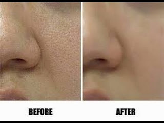 Cara Mudah Mengecilkan Pori Wajah