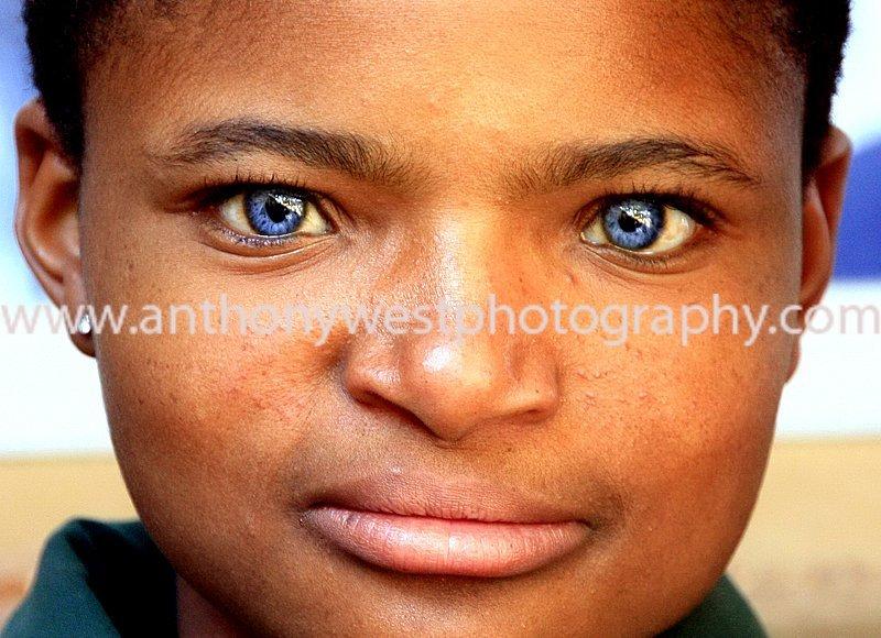 BLACKS WITH BLUE EYES: NATURAL PHENOMENON OR GENETIC ...