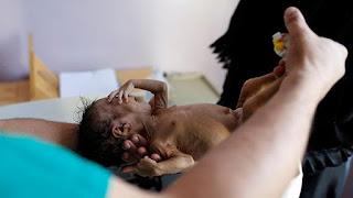 Dampak Pemberontakan Syiah Houthi: 1 Anak Yaman Meninggal Setiap 10 Menit