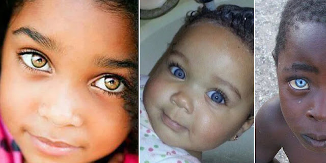10+ Poor Child's Who Are Born With Worlds Expensive Eyes, You Never Seen Before!