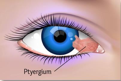 Cara Menyembuhkan Mata Pterigium Tanpa Operasi