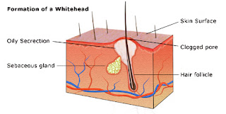 formation of whiteheads