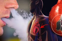 Addictive Nicotine in E-Cigs Develops Adrenaline Levels, Causing Heart Disorders
