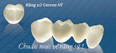 Răng sứ cercon có độ bền như thế nào?