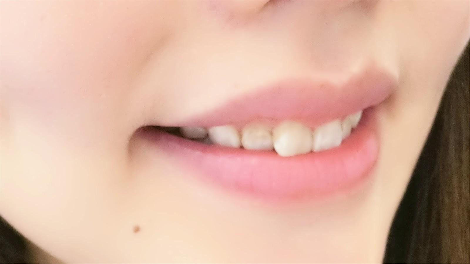 牙齒矯正過程『成為箍牙妹的小轉變』鄧幹耀牙醫 Dr. Tang Kon Yiu – 圓圓 (YUENBLOG)