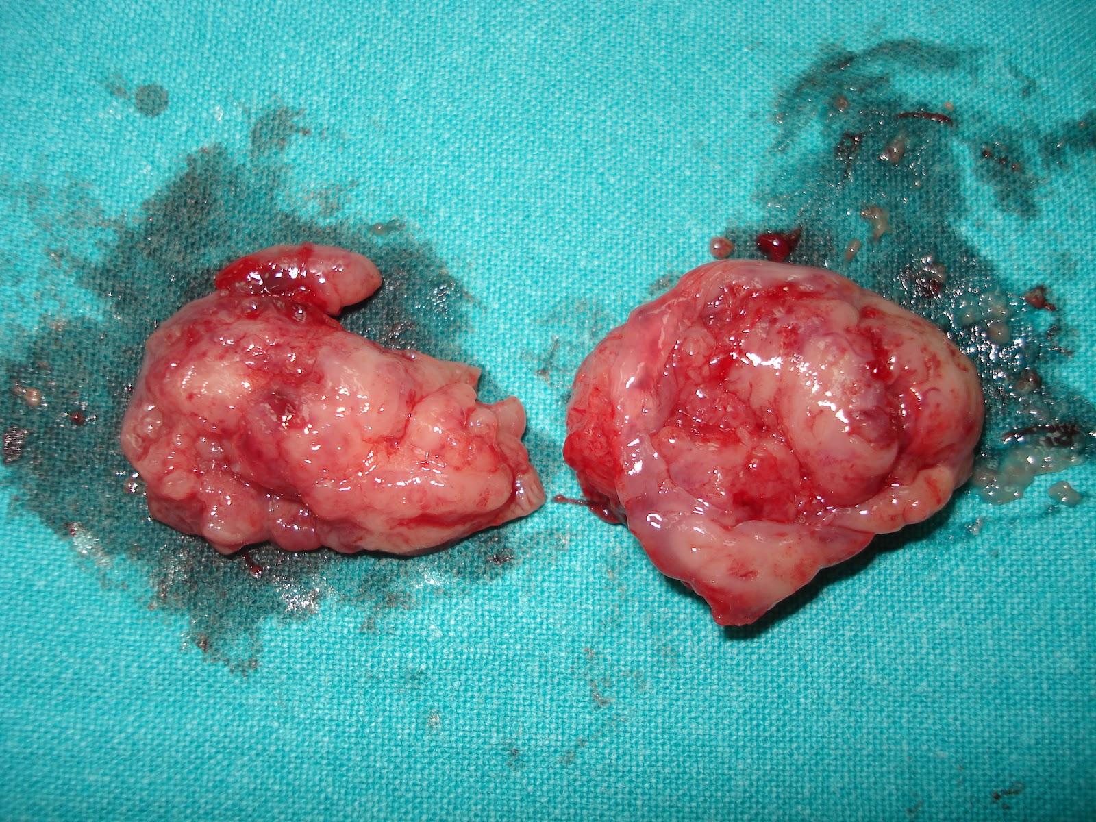 Dolore Alla Gola Dopo Tonsillectomia