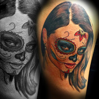 tattoo removal melbourne