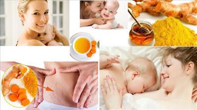 chữa nám da sau khi sinh an toàn bằng tinh bột nghệ