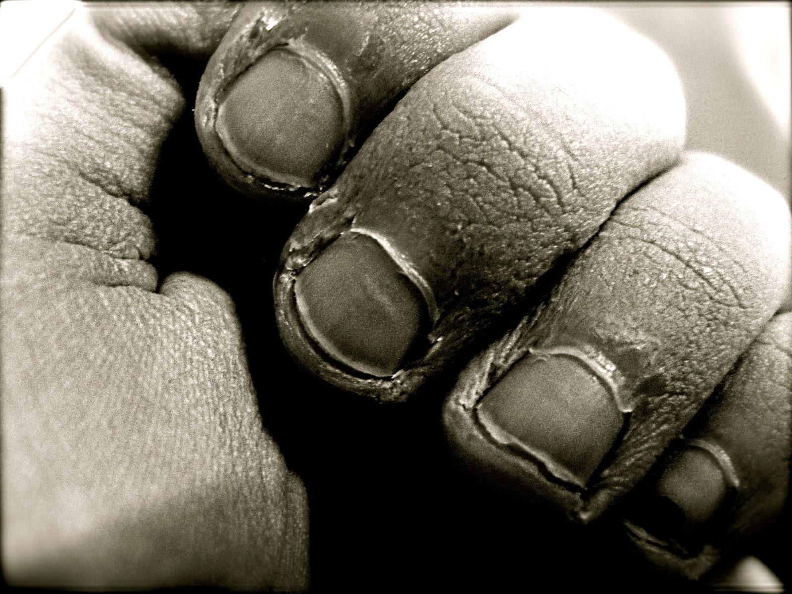 El tratamiento del hongo de las uñas en los pies de la gota