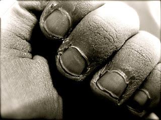 las uñas mordidas o quebradizas afean el aspecto de las manos
