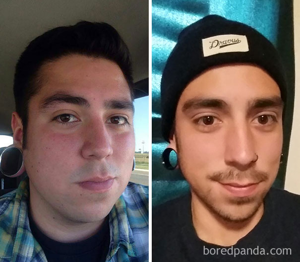 10+ Before-And-After Pics Show What Happens When You Stop Drinking - 1 Year Sober
